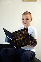 Pictured: Alan Gifford reading a book. Friday 18 August 2017<br /> Re: 11 year old Alan Gifford who has two prosthetic arms, Loughor near Swansea, Wales, UK.