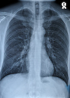 X-ray of healthy mature man's torso (Licence this image exclusively with Getty: http://www.gettyimages.com/detail/96354149 )