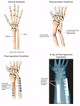 Fractured Radius and Ulna (Broken Wrist) with Fixation Surgery. This medical exhibit illustrates three conditions of the bones of the right forearm with a matching post-operative x-ray film. Images include normal anatomy of the radius and ulna, a post-accident comminuted fracture of both bones, and a post-operative condition of the fractures reduced and fixated with hardware (plates and screws).