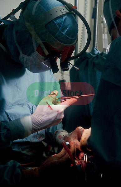 close-up view of surgeon performing open heart surgery