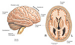 This full color stock medical exhibit illustrates the primary anatomy of the normal healthy brain from an anterior (front) view and a cut-away section viewed from above. Labels identify the cerebrum, parietal lobe, occipital lobe, cerebellum, medulla oblongata, temporal and frontal lobes.