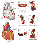 This comprehensive series of illustrations depicts fatal coronary artery disease due to atherosclerosis and plaque formation blocking the arteries in the heart.