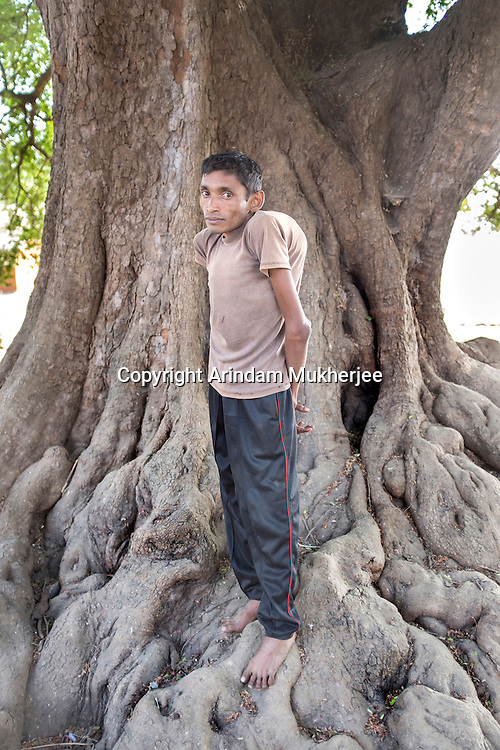 Nitai Gope, 32, lives in Rondih village, barely 3km from one of the tailing ponds. Nitai has thin, weak limbs. His father worked in one of the uranium mines. His spine is bent and now he has a growing hump on his left shoulder.