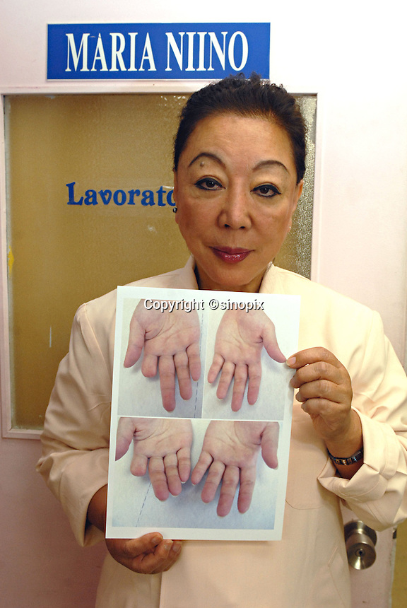 President of the Hello Tomorrow Clinic, Maria Niijo in Tokyo, Japan. The clinic specializes in making false fingers to Japanese gangsters, known as the Yakuza, who have had to show allegiance etc by cutting their own fingers off.  The clinic has made and fitted fingers to over 3,000 gang members who need to disguise thier back-ground.<br /> 10-Oct-2006