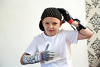 Pictured: Alan Gifford putting a hat on. Friday 18 August 2017<br /> Re: 11 year old Alan Gifford who has two prosthetic arms, Loughor near Swansea, Wales, UK.