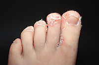 Forefoot eczema. This image may only be used to portray the subject in a positive manner..©shoutpictures.com..john@shoutpictures.com