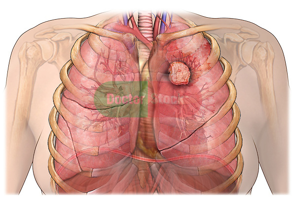 This stock medical image features a female thorax with lungs and a large tumor mass in the left lung.