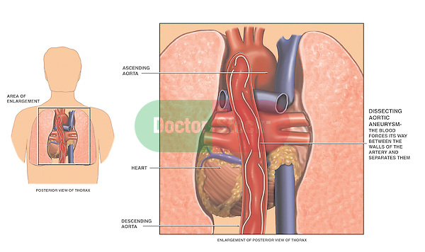 This medical exhibit depicts a dissecting thoracic aortic aneurysm from a posterior (rear) view.  The first image shows the location of the heart, lungs and aorta in the body. The second image is a posterior view of the dissecting thoracic aortic aneurysm showing blood forcing its way between the walls of the descending aorta.