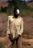 Chimoio / Mozambique 1993.Un giovane rimasto ferito dall'esplosione di una mina - young man injured by a land-mine..Photo Livio Senigalliesi.