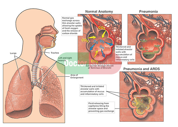 Pneumonia and Adult Respiratory Distress Syndrome (ARDS). Shows lungs within the chest, identifying the terminal alveoli where the disease begins.  Subsequent graphics show progression of ARDS: 1. Normal anatomy of the alveoli with normal gas exchange; 2. Pneumonia with thickening of the alveolar wall and accumulation of mucus within the alveolar sac; 3. Pneumonia and ARDS showing final disruption of gas exchange due to foreign fluid.