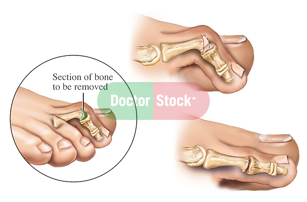 This medical artwork features three drawings of a hammer toe deformity and a surgical procedure to repair it. The first image shows the toe bent downward like a claw. The second figure illustrates the section of bone to be removed in order to correct the deformity. Lastly, an post-operative image straightened PIP joint is included.