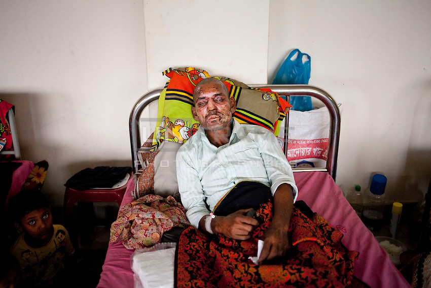 Siful, 45, CNG driver, receives treatment at a medical college hospital after being injured in a recent bomb attack during the ongoing nationwide blockade called by the opposition Bangladesh Nationalist Party (BNP), in Dhaka, Bangladesh, Sunday, Jan. 18, 2015.