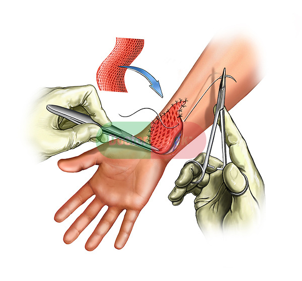 Wrist Skin Graft; this medical illustration depicts the application of the skin graft to the wrist.