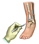 malunion of tibial fracture fixation
