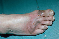 Burns to foot caused by lightning. This image may only be used to portray the subject in a positive manner..©shoutpictures.com..john@shoutpictures.com