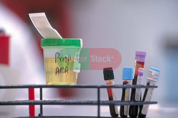blood and urine samples waiting to be analyzed
