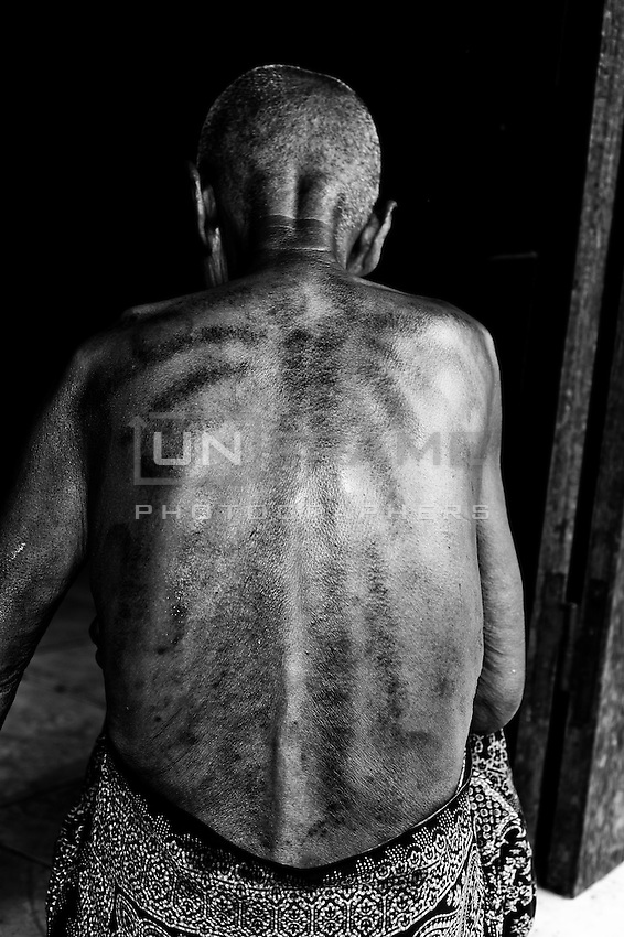"""Borrowed by Cambodians from China Gua aha or """"scraping sha-bruises"""" is a traditional treatment  in which the skin is repeatedly scraped to produce bruising. Practitioners believe gua aha releases unhealthy elements from injured areas and stimulates blood flow and healing."""