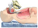 Proper Laryngoscopic Endotracheal Intubation