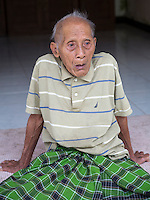 Bali, Indonesia.  Old Hindu Balinese Man Suffering from Cataract-impaired Vision.
