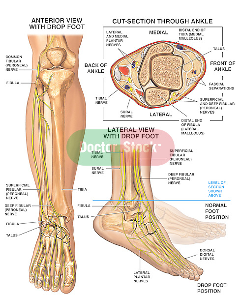 This full color medical-legal illustration shows the anatomy of the right foot and ankle with foot drop. Three images reveal the anatomy of the lower leg from an anterior (front) view, lateral (side) view, and cut-section through the ankle with the bones and nerves clearly labeled. The lateral (side) view image illustrates the foot in the foot drop position with a ghosted image of the normal anatomical position.
