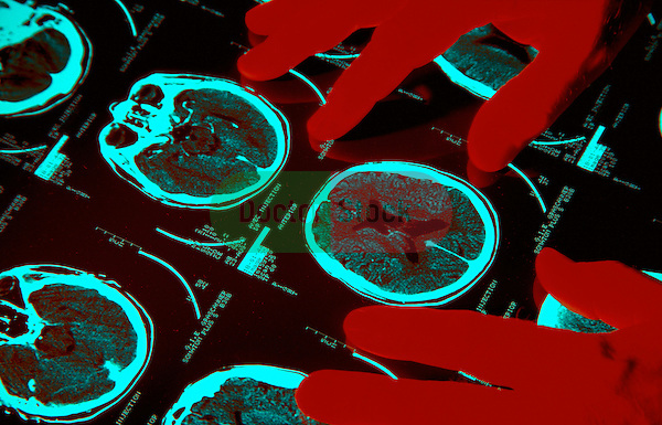 Hands on film of brain  scan, doctor examining