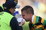 Brian Moylan of Glen Rovers gets attention for a nose injury during their Munster Club hurling final at Thurles. Photograph by John Kelly.