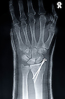 Man's (58)  broken left hand under cast, X-ray (Licence this image exclusively with Getty: http://www.gettyimages.com/detail/98627212 )