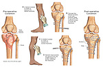 Knee Injury - Fractured Tibial Plateau with Fixation Surgery. Several separate illustrations explain the following operative elements: 1. Initial condition prior to surgery shown from an anterior (front) view of fractures to the tibial plateau; 2. Lateral incision with placement of fixation plate and screws; 3. Medial incision with placement of additional fixation screws; 4. Final appearance with all fixation hardware in place securing the fractures.