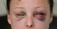 "Pictured: Jenna Thomas after she was attacked<br /> Re: A 22 year old mum says she is ""terrified to go home"" after she says she was strangled and severely beaten by her partner of four months.<br /> Jenna Louise Thomas, of Crindau, Newport, says the prolonged attack by her partner, Jamie Webber, on Sunday night was witnessed by her four-year-old son.<br /> She has been left with two black and bloodshot eyes and a swollen face.<br /> Miss Thomas, who is also known as Jenna Francis, says Jamie Webber is now on the run.<br /> Gwent Police confirmed that they are actively looking for him and have warned people not approach him."
