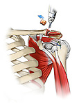 Claviculectomy; depicts the surgical removal of all or part of a clavicle