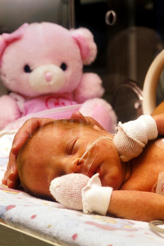 Premature infant.