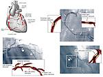 Heart - Coronary Arteries with Angiogram Films.