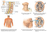 C3-4, C4-5 Cervical Spine Injuries with Surgical Discectomy and Fusion.
