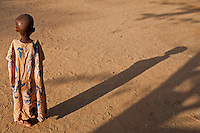 A severely manourished child in Dagahaley, one of three settlements in Kenya's sprawling Dadaab refugee camp. Hundreds of Somali refugees are arriving each day having fled drought,famine and civil war in Somalia.