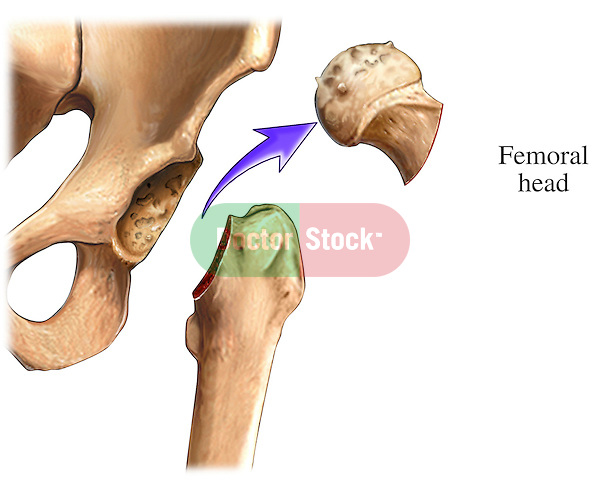 This medical exhibit illustrates the removal of the femoral head.