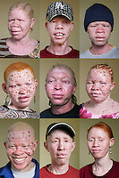 Nine of the 12 members of the Albino Revolution Cultural Troupe (ARCT). They're all albinos. It was created in 2000 by artist Tito David Ntanga (bottom left). They organise musical and theatre performances at conferences, meetings and cultural events. They have already campaigned around issues like HIV/AIDS and civil rights and are now campaigning against the stigmatisation and killing of albinos. Discrimination against albinos is a serious problem throughout sub-Saharan Africa, but recently in Tanzania albinos have been killed and mutilated, victims of a growing criminal trade in albino body parts fuelled by superstition and greed. Limbs, skin, hair, genitals and blood are believed by witch doctors to bring good luck, and are sold to clients for large sums of money, carrying with them the promise of instant wealth.