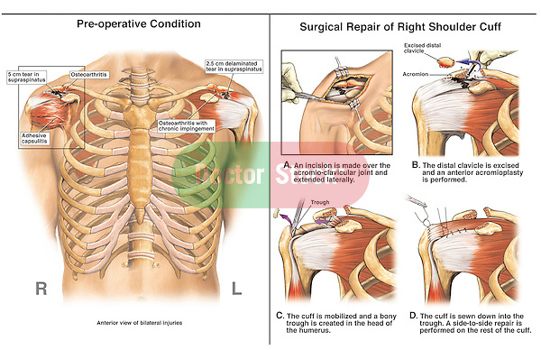 Rotator Cuff Surgery.