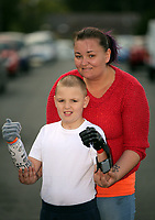 Pictured: Alan Gifford with his mum Hannah Jones. Friday 18 August 2017<br /> Re: 11 year old Alan Gifford who has two prosthetic arms, Loughor near Swansea, Wales, UK.