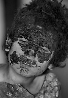 A boy with severe burn wounds in a hospital in the Afghan capital Kabul on January 13, 1989. The boy was injured when his friend picked up an unexploded magnesium flare, used by airplanes as countermeasures to heat-seeking missiles.