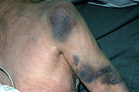 Contusions of the upper arm. This image may only be used to portray the subject in a positive manner..©shoutpictures.com..john@shoutpictures.com