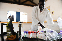 SOUTH SUDAN, Rumbek , health center , blood test for Malaria and other disease / SUEDSUDAN Rumbek , Gesundheitsstation , Bluttest fuer Malaria und andere Krankheiten