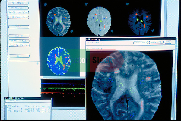 computer screen with brain scan, diagnostic