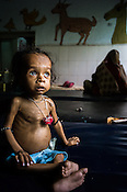 18 month old Prahlad Ramesh, an extremely malnourished boy poses for a photo at the Nutrition Rehabilitation Centre (NRC) in Khaknar block of Burhanpur district in Madhya Pradesh, India. Prahlad was admitted to the NRC on Sept 13, 2012 and weighed 4.400Kg and his weight on Sept 18, 2012 was recorded at 4.730Kg. Photo: Sanjit Das/Panos for ACF