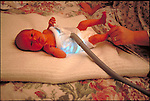 young infant treated at home for jaundice with phototherapy