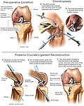 Knee Joint Injury - Torn Posterior Cruciate Ligament (PCL) with Surgery Repairs.
