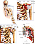 Normal Anatomy of the Shoulder Joint and Rotator Cuff Muscles. Labels include muscles: supraspinatus, infraspinatus, subscapularis, teres minor. Bones and bony landmarks: humerus, scapula, clavicle, ribs, head of humerus, coracoid process, acromion, and glenoid labrum (articular cartilage).