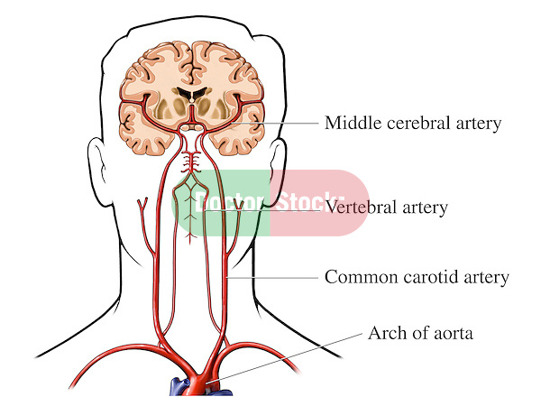 This exhibit features a silhouette view of a male head and neck revealing the blood supply to the brain. Illustrated and identified with labels are the arch of the aorta, common carotid artery, vertebral artery and the middle cerebral artery.