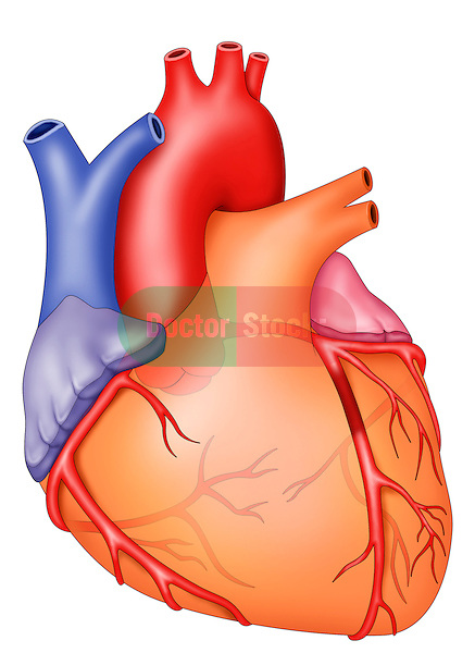 anterior view of heart, LAD occluded