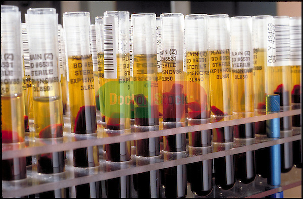 rack of test tubes of separated blood samples