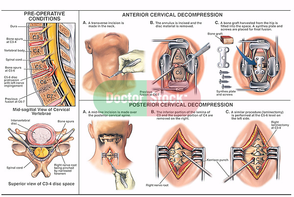 Neck Pain - C5-6 Anterior and Posterior Cervical Decompression Surgery